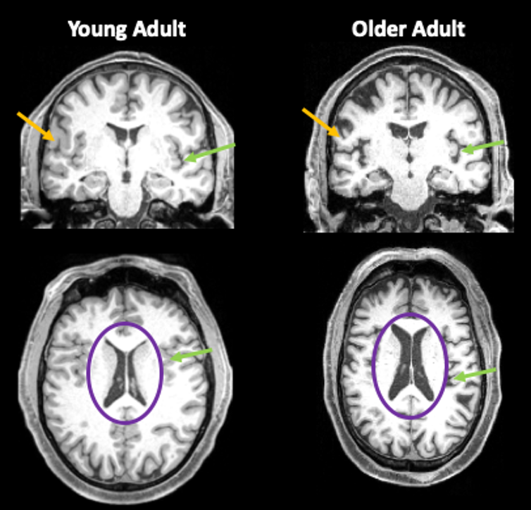 Brain scans from a person in their 30s and a person in their 80s, showing reduced brain volume in the older adult brain