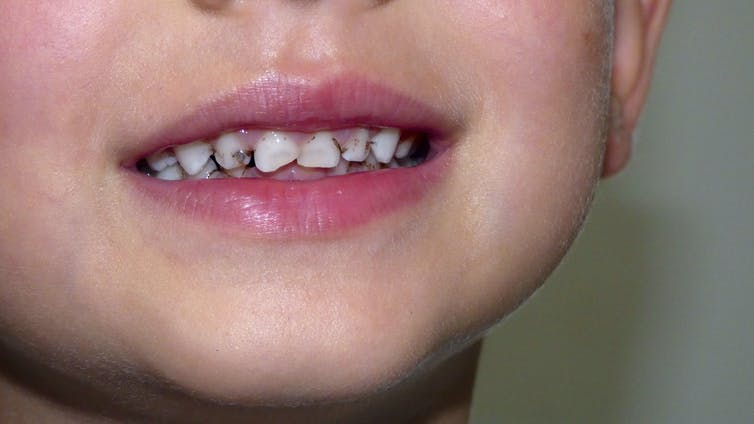 A child with dental carries smiling for his picture.